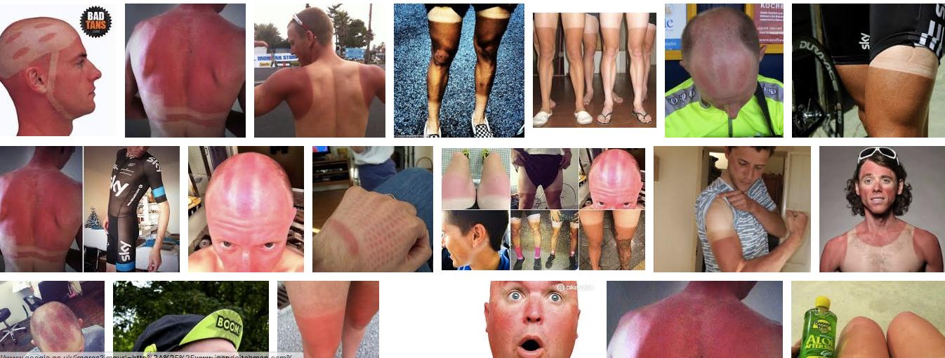 sunburn_in_cycling_-_Google_Search